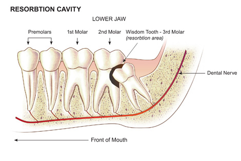 wisdom_teeth2